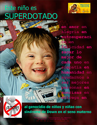http://www.revistaecclesia.com/wp-content/uploads/2013/03/sindrome-down.jpg